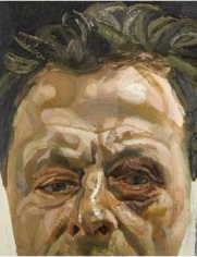 Self-Portrait with Black Eye, 1978